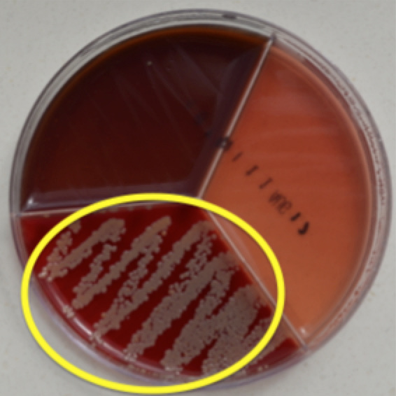 Staphylococcus aureus displaying hemolysis on Factor agar.