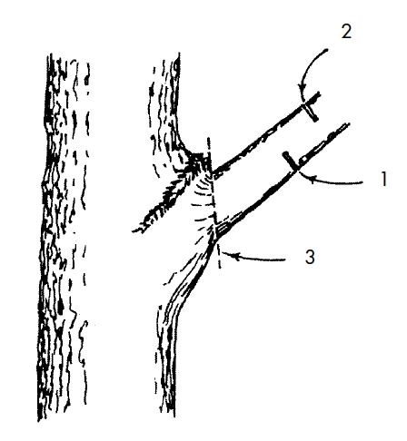 Example of the drop cut used to remove large limbs. Figure 1 in text.
