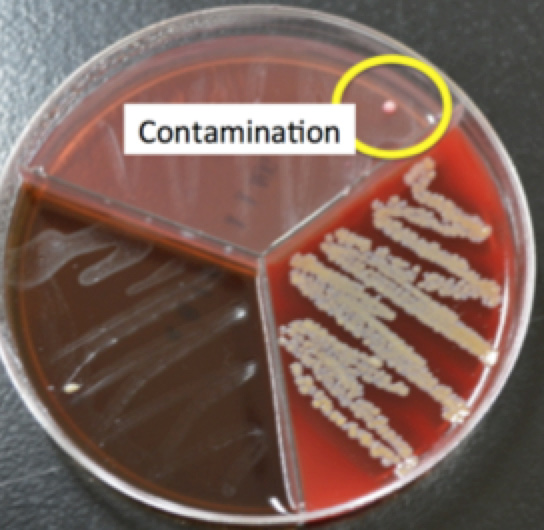 different contamination types and appearances.