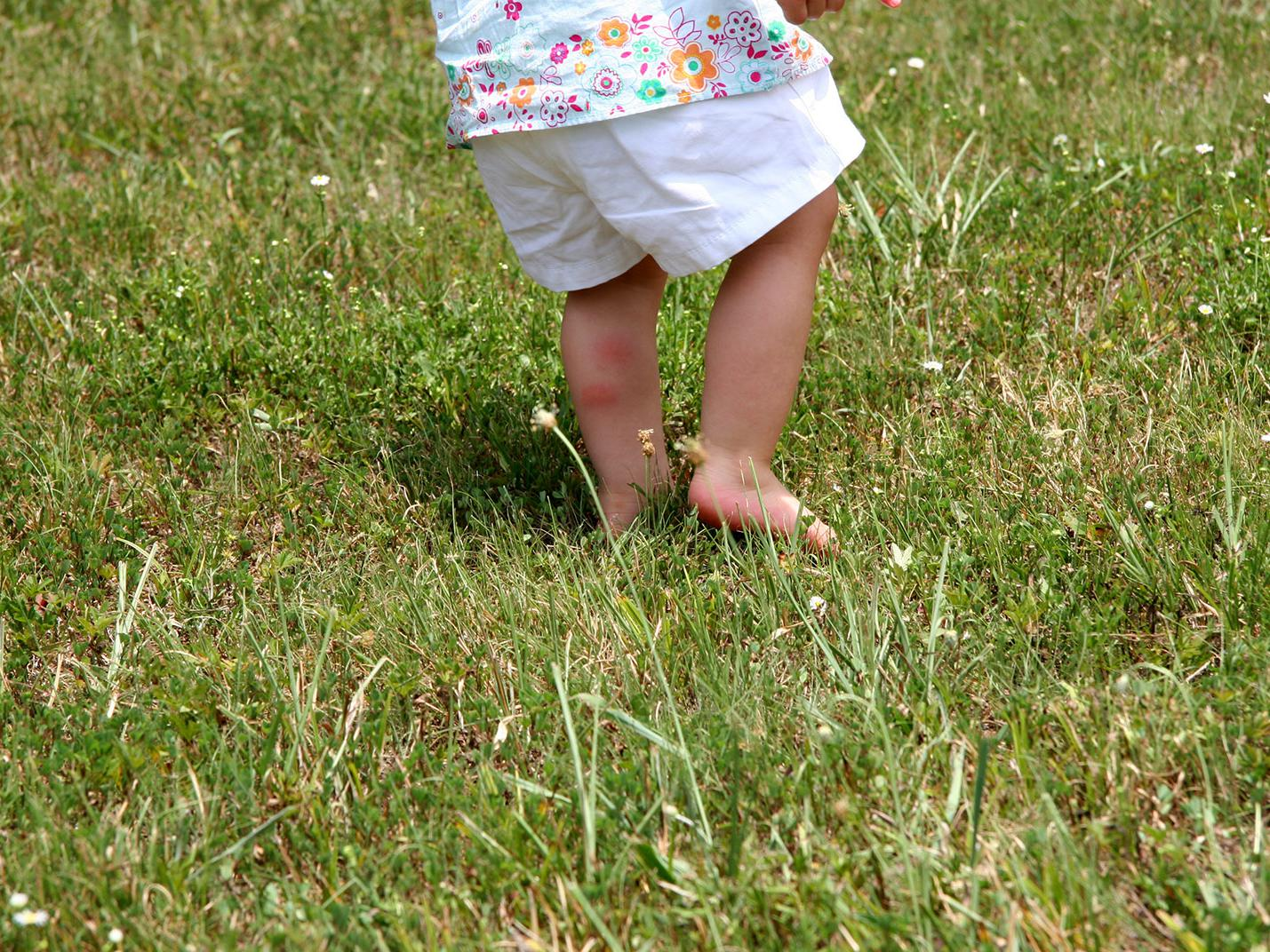 A small child runs barefoot through tall grass and has red insect bites on his calf.