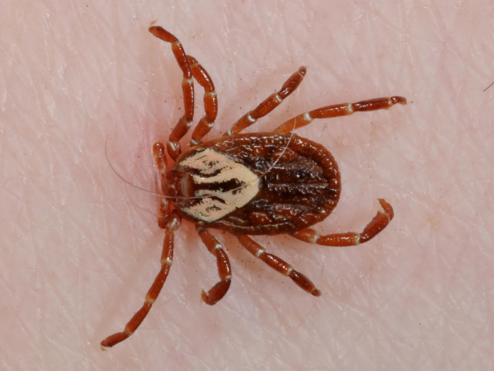 Close-up of a tick attached to human skin.